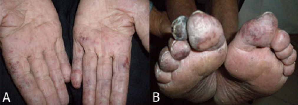 Pan african medical journal images in clinical medicine for Fish scale coke